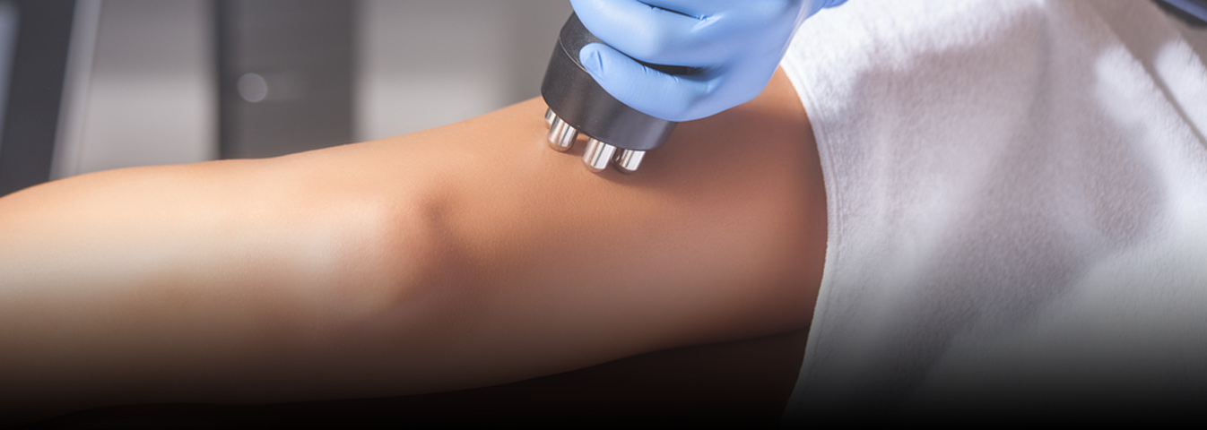 Cellulite treatment services in London